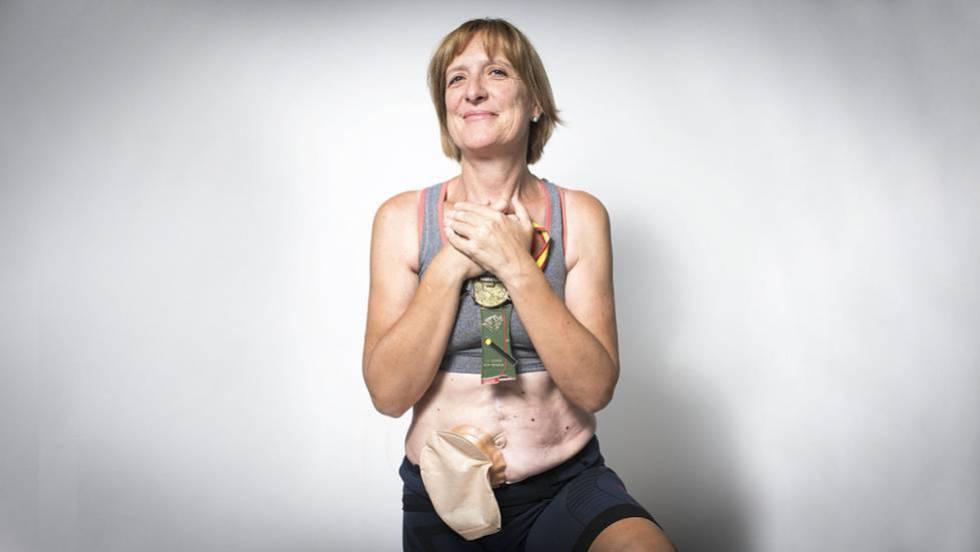 cancer de colon bolsa concept de vierme