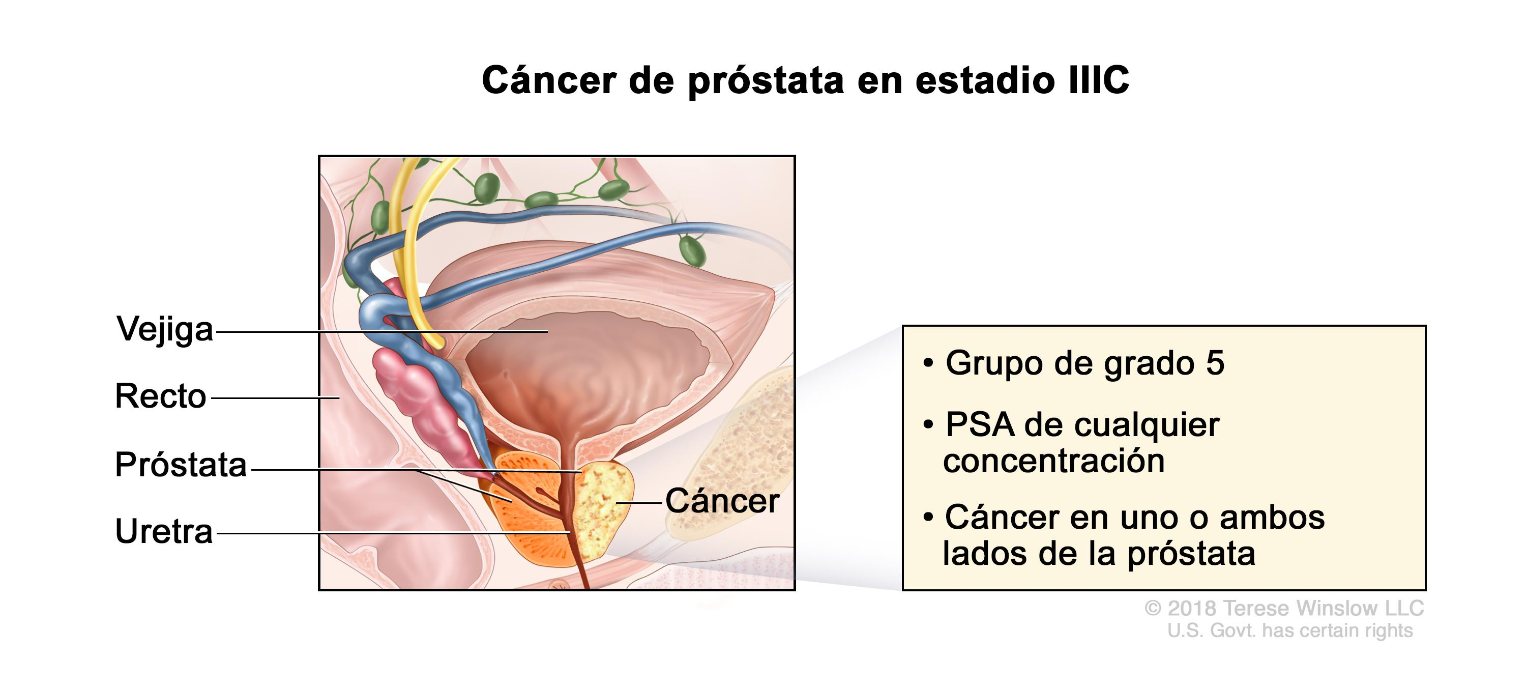 cancer de prostata nivel 5