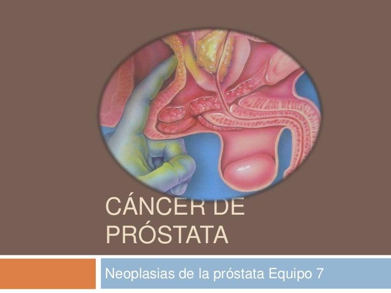 Hpv and cervical cancer slideshare Cancer de prostata hormonorezistent