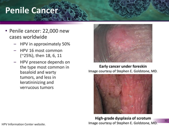 cancer from hpv in males papilloma virus in un uomo