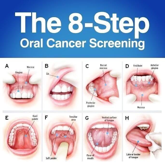 cancer hpv mouth papilloma skin histopathology