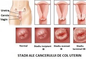 Cancerul ovarian: factori de risc, diagnostic si simptome
