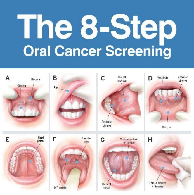 Cancerul de buza - Stomatologie