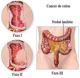 cancerul colorectal tratament