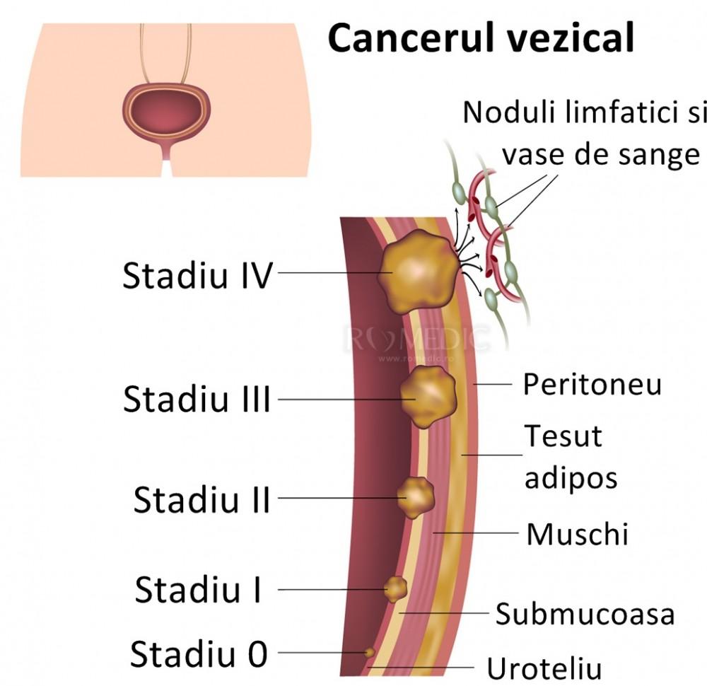 cancerul de vezica urinara cauze