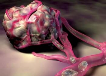 Secţiunea Accesibilitate - Cancerul, tumori maligne