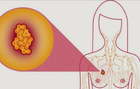 cancerul mamar papilloma virus hpv 56