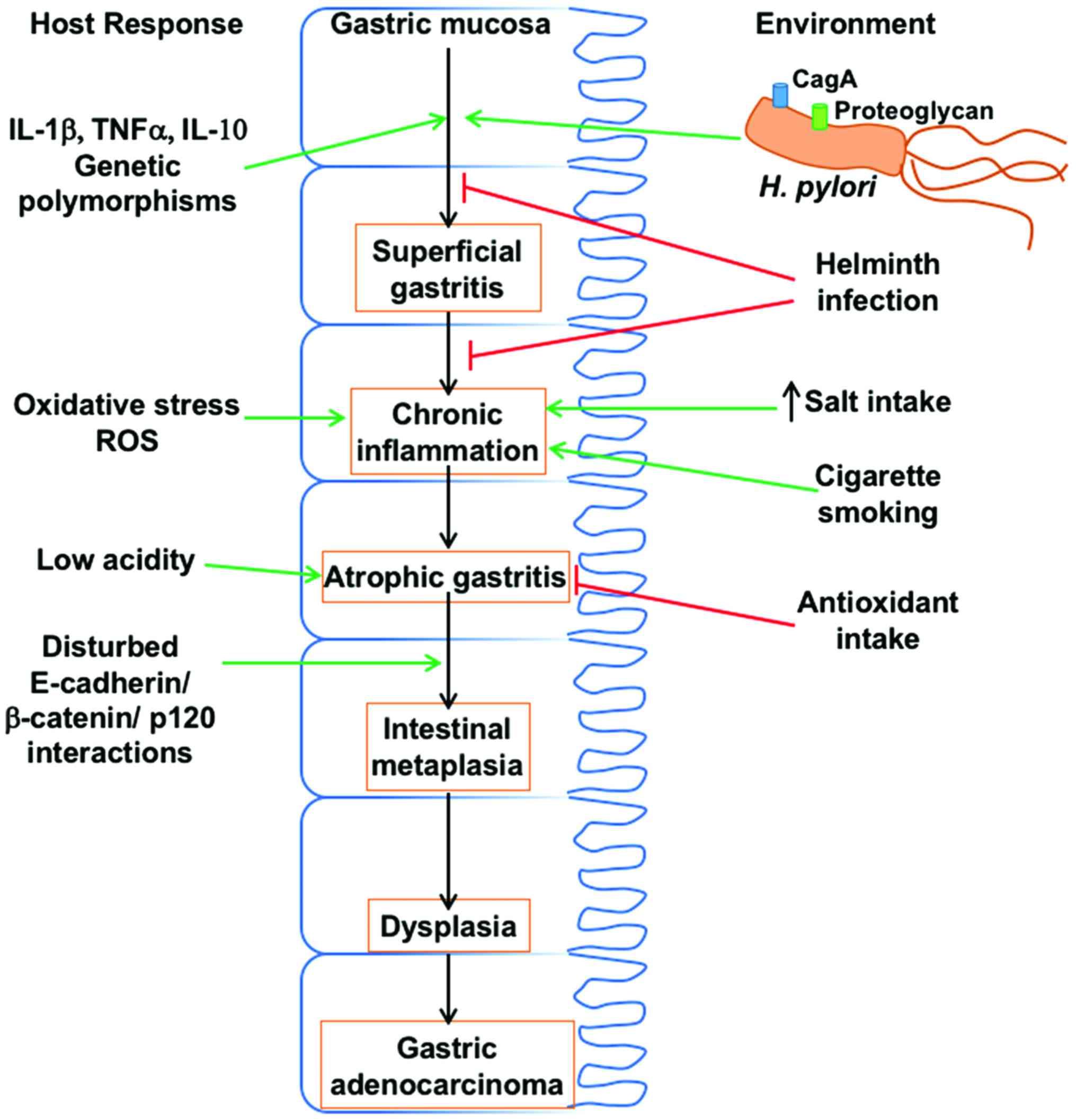 Gastric cancer from h pylori. Ce este cancerul gastric?