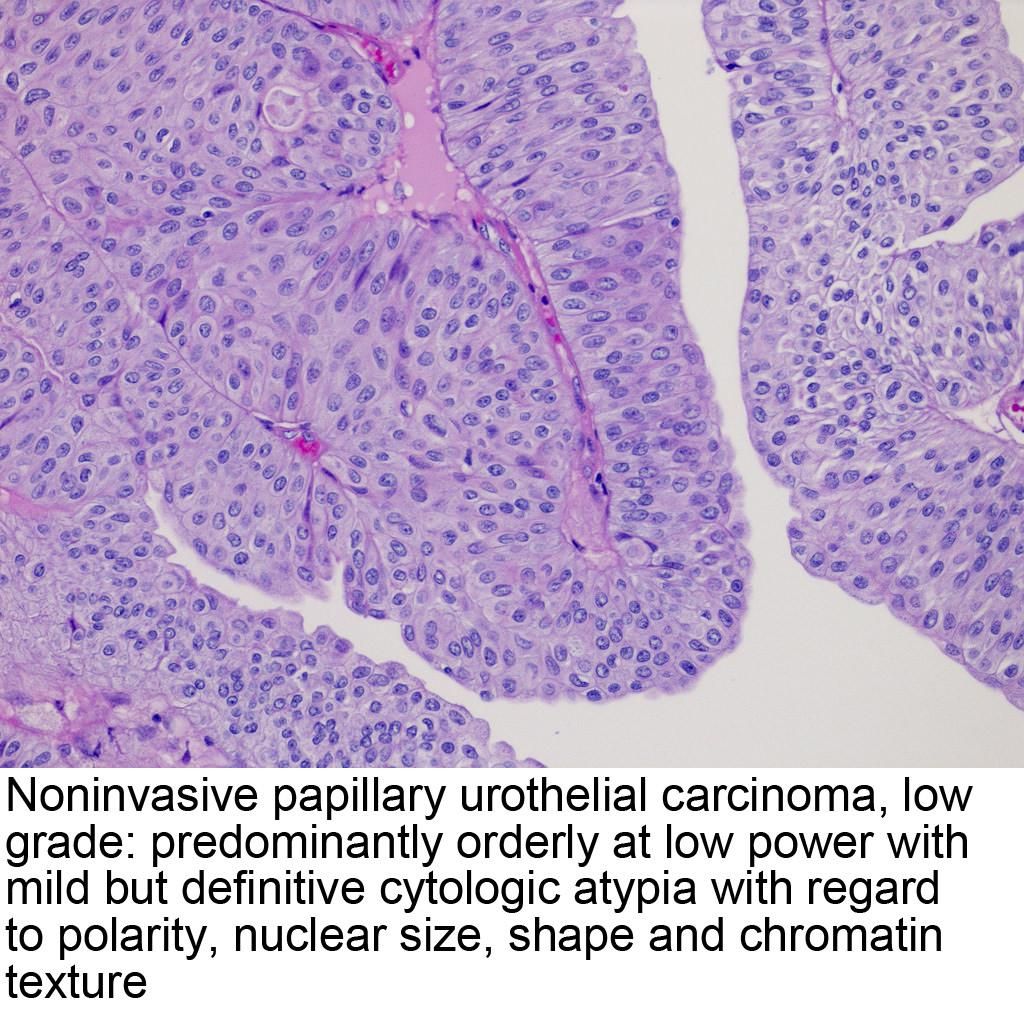 Gastric cancer pathology outlines