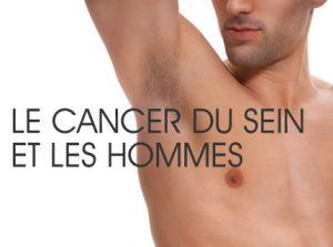 Orice Tumoră înseamnă Cancer? | Lifestyle, Sănătate și Fitness | Libertatea | Libertatea