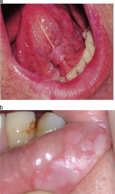 Hpv mouth and throat symptoms, Tratamentul carcinoamelor de planşeu oral anterior
