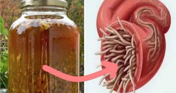 toxine urinaire