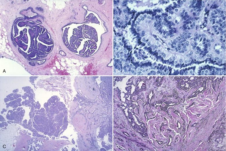 papilloma in conjunctiva