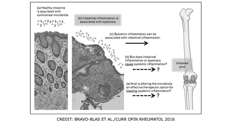 dysbiosis rheumatoid arthritis que alimentos producen oxiuros