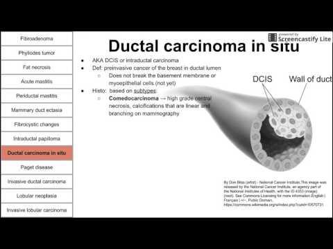 papiloma ductal bucal