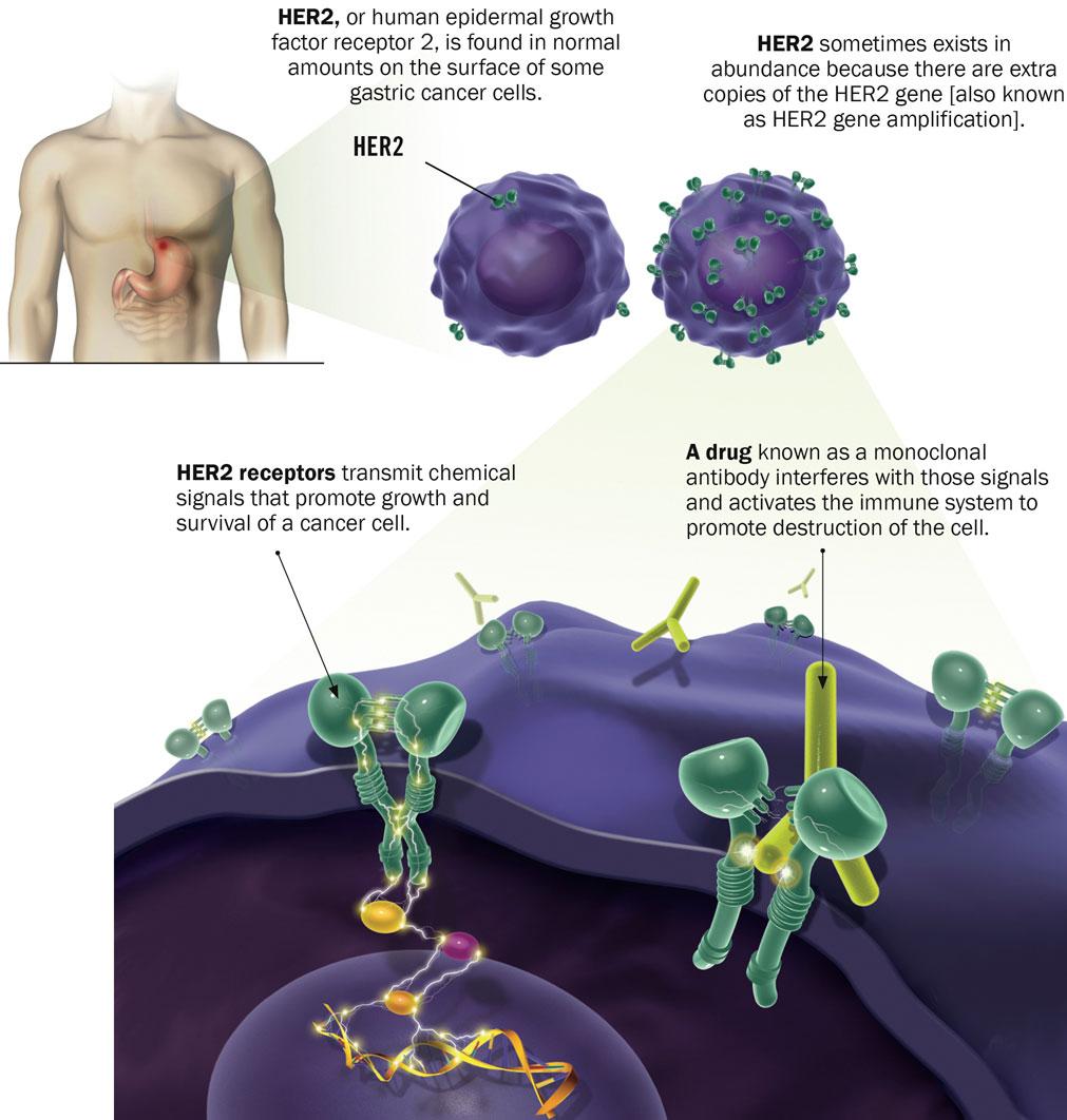 Abdominal cancer cells - Papillon zeugma pareri