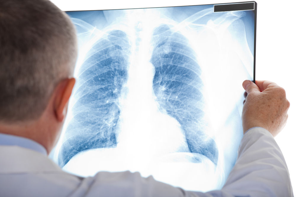 Simptomele înșelătoare ale cancerului la plămâni