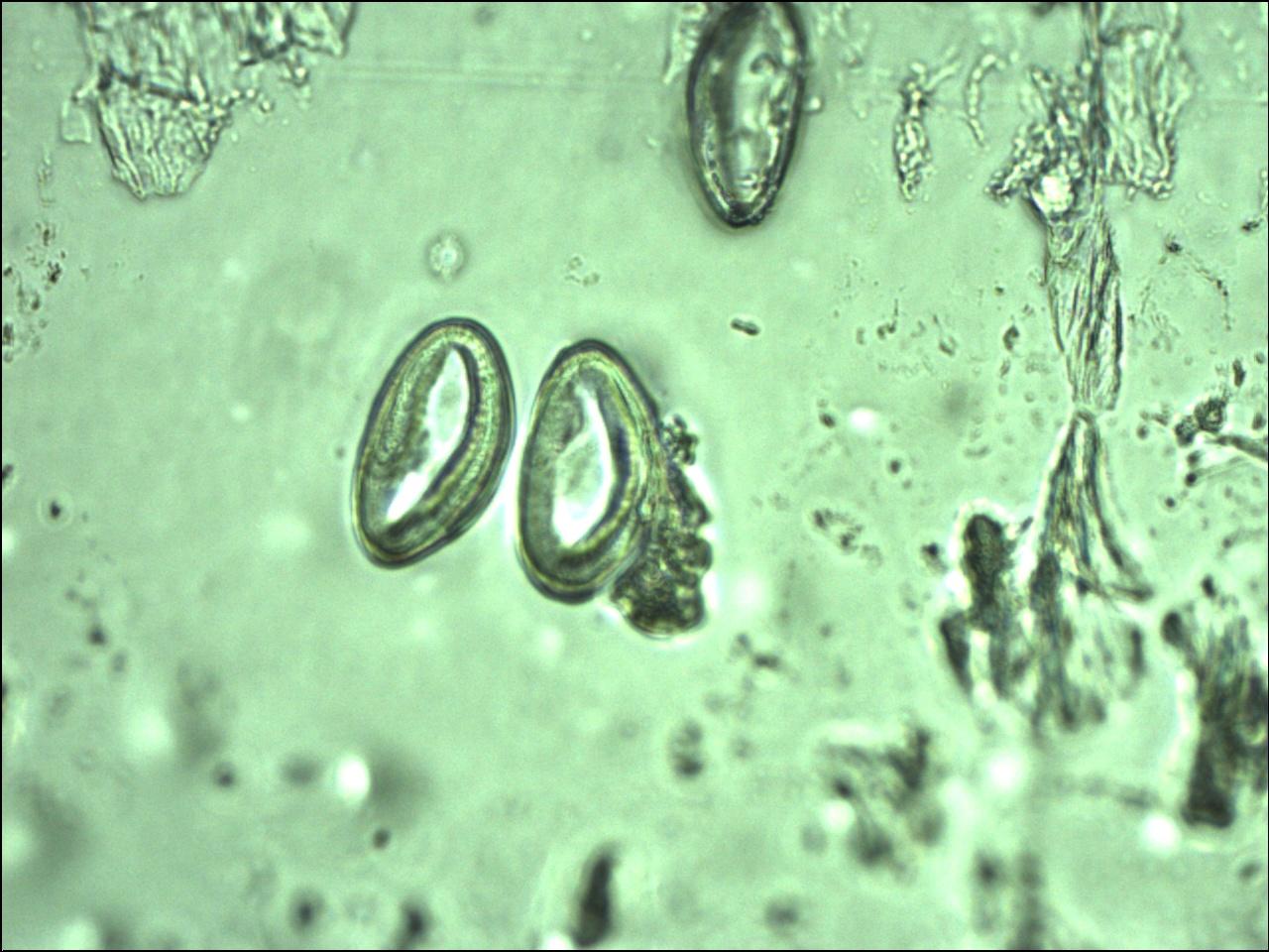 enterobius vermicularis kod dece hpv virus ferfiaknak