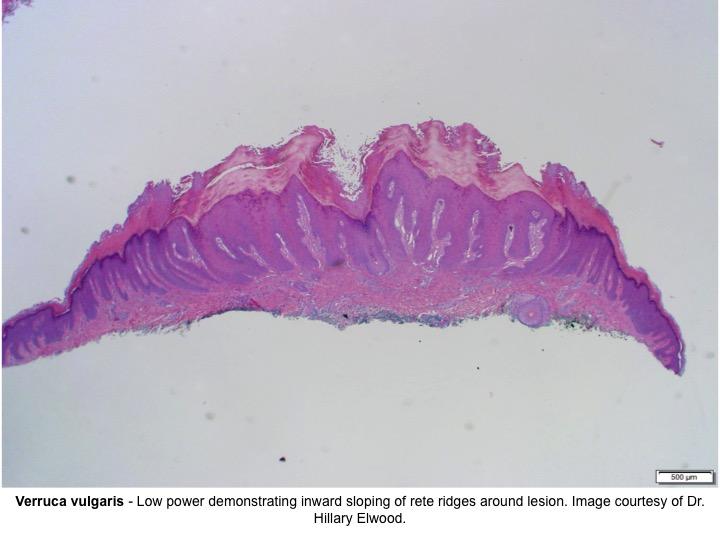 human papillomavirus yleisyys belfergesseg bno kod