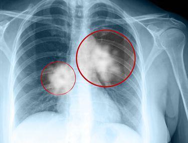 tratament pentru cancerul la plamani după tratarea viermilor