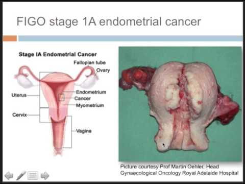 endometrial cancer no bleeding