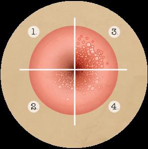 Papillomavirus porteur a vie - Mult mai mult decât documente.