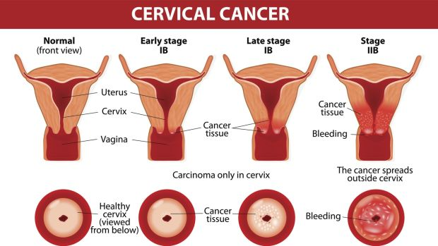 Association between hpv and cervical cancer. Activities