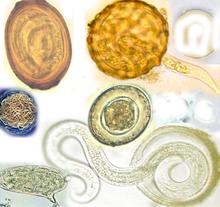 geohelmintiaza enterobiozei