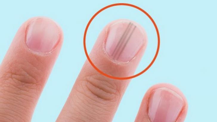 cancer de unghie ce este papiloma virus uman