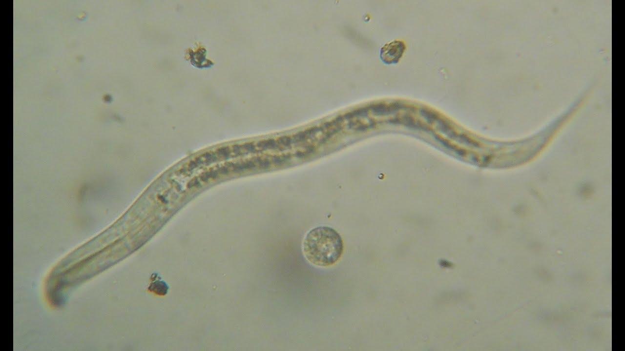 diferență între helminți și nematode