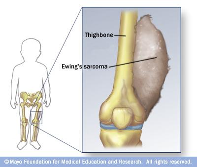 cancer sarcoma de ewing reacție la un medicament pentru viermi