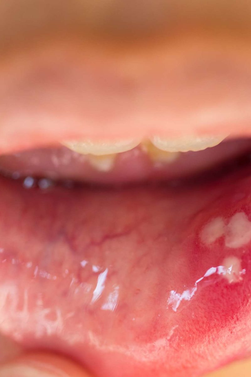Hpv mouth sores. Cancer endometrial tratamiento