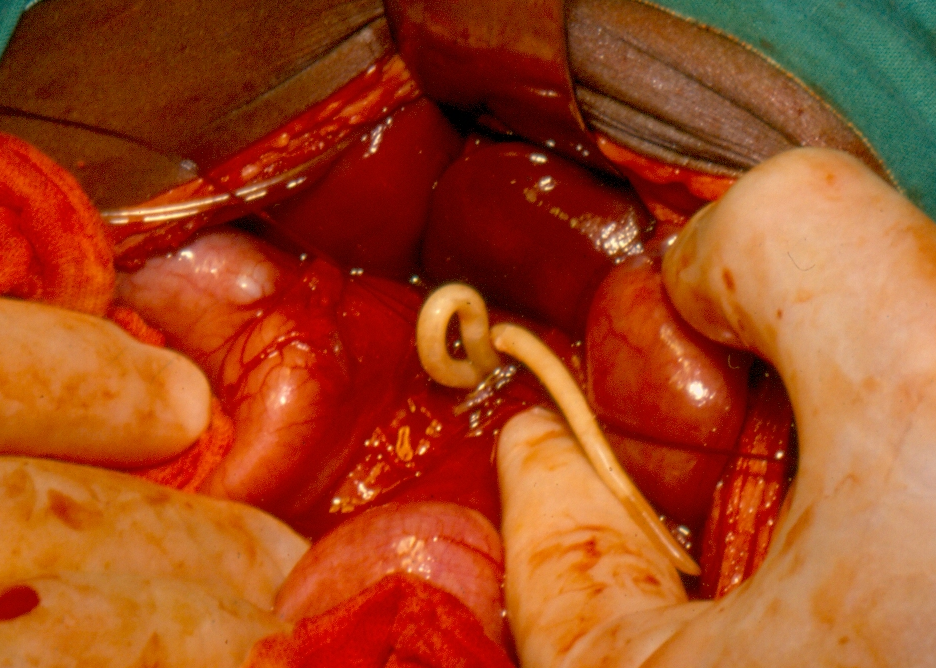 helminth medical term definition cum să eliminați viermii medicament