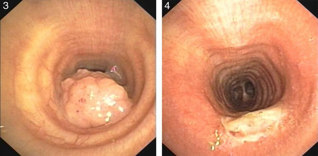 Respiratory papillomatosis neoplasia. V-ar putea interesa