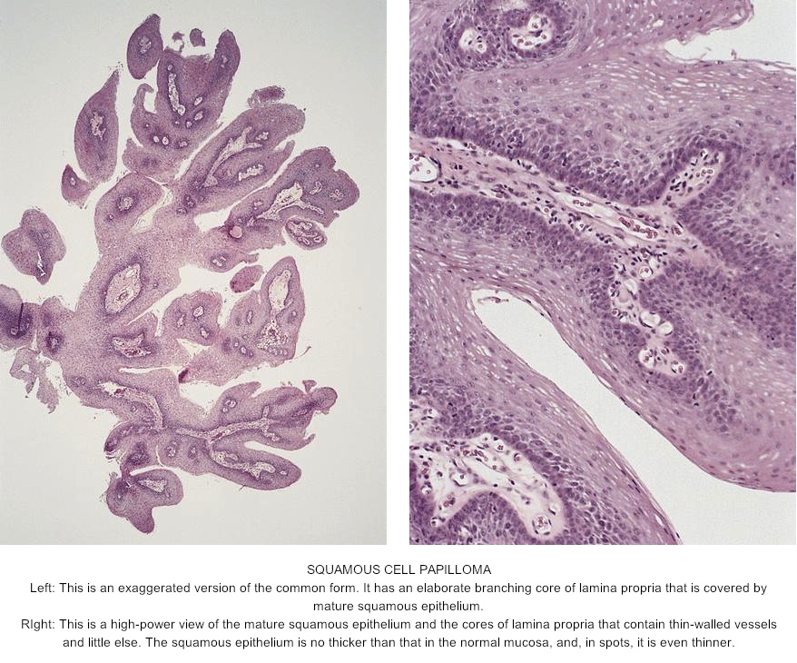 squamous papilloma esophagus histology