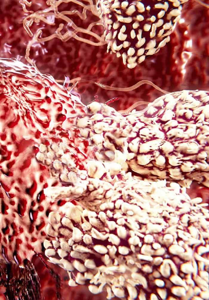 gastric cancer vasculitis papillomavirus male