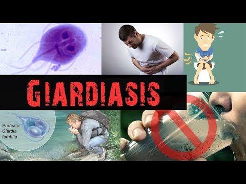 Giardia zwangerschap, Giardia bij mensen zwanger. Навигация по записям