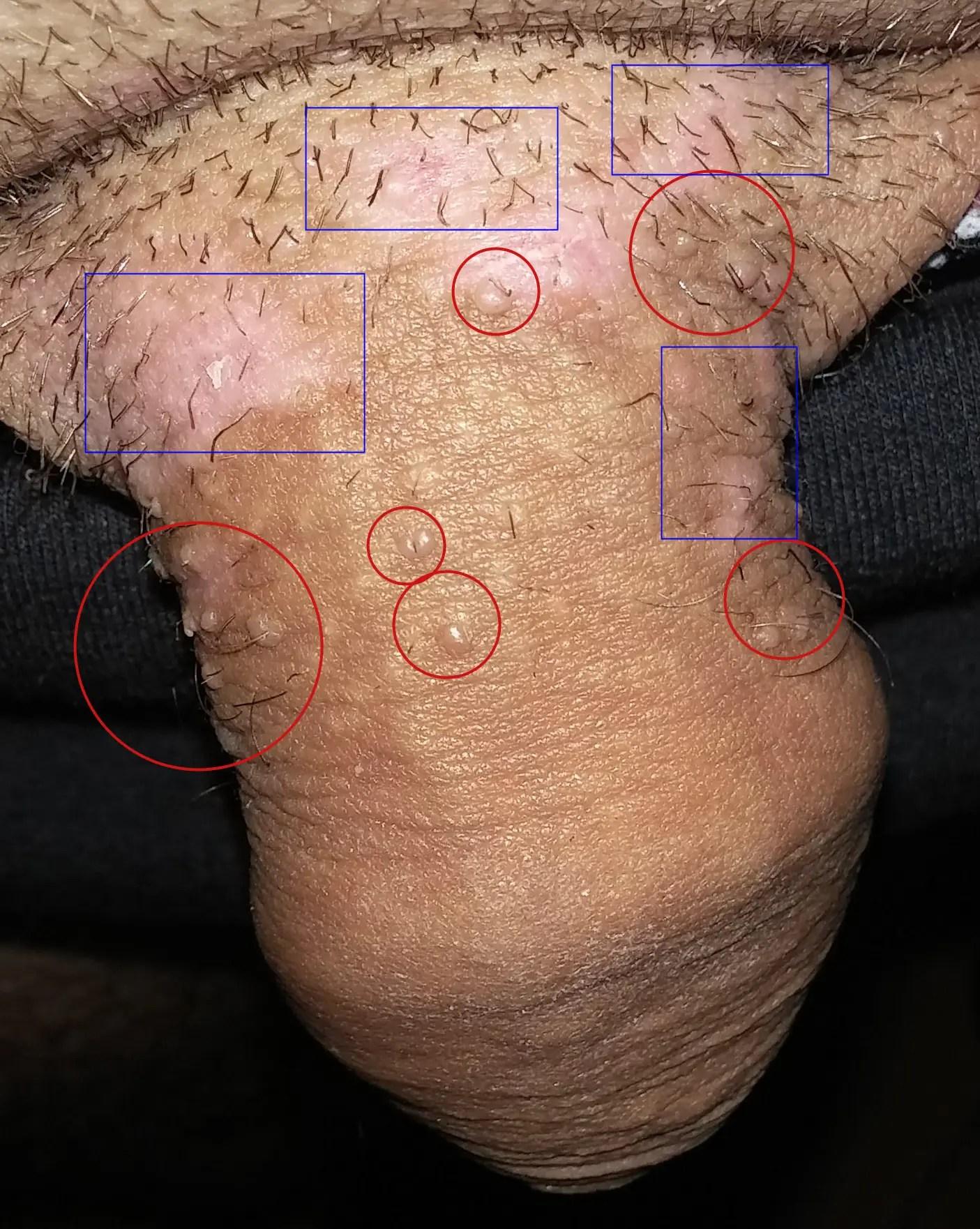Papillomavirus levres bouche