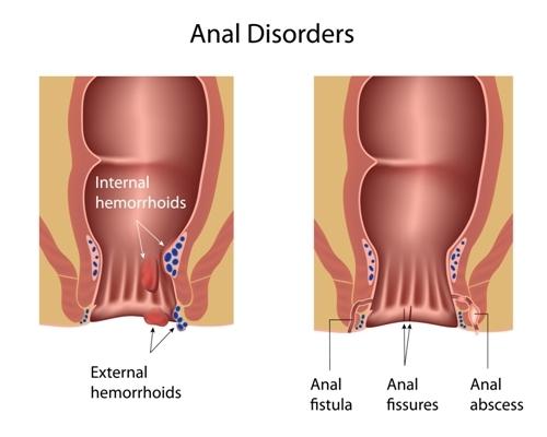 hemorrhoids cancer colon neuroendocrine cancer zebra