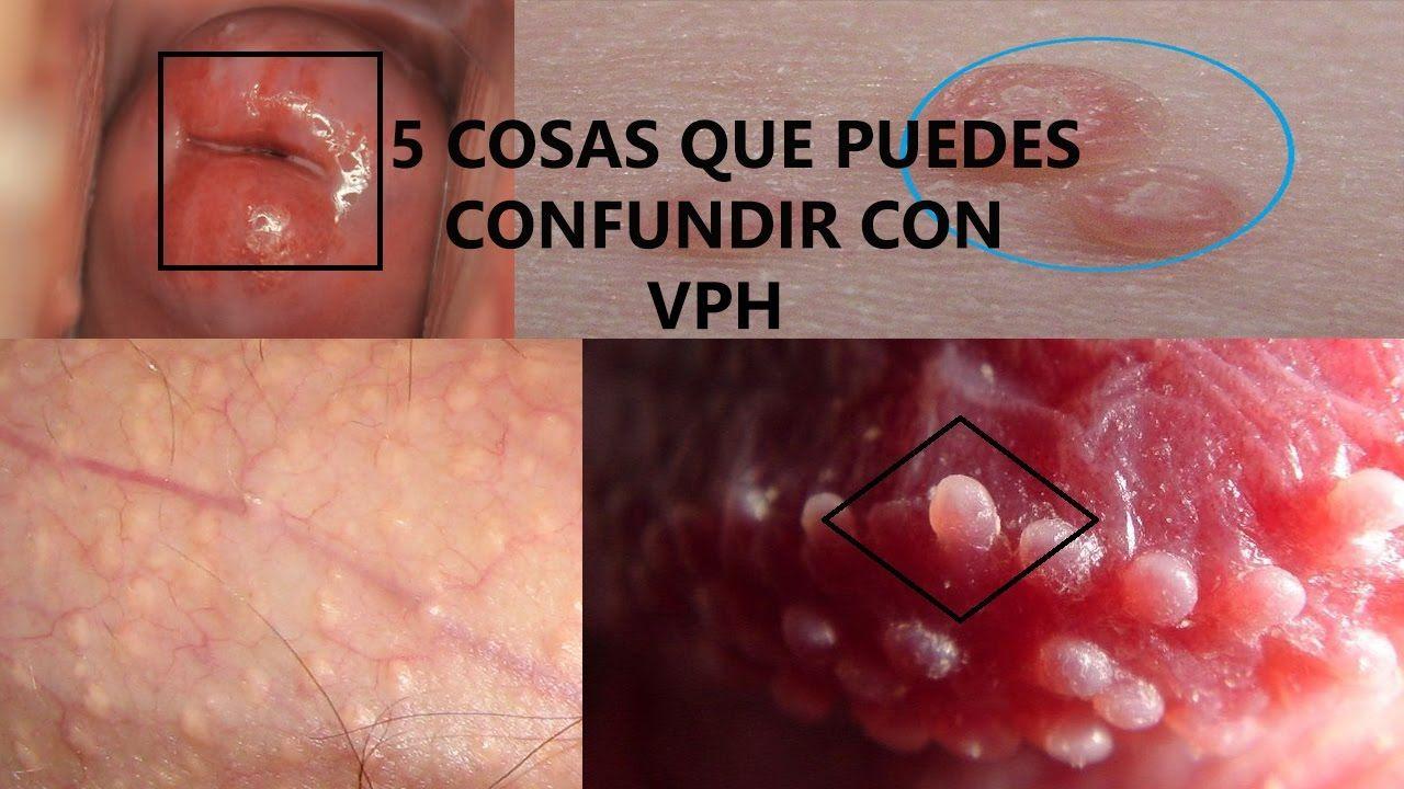 Protejați-vă Viitorul, Herpes labial papiloma humano