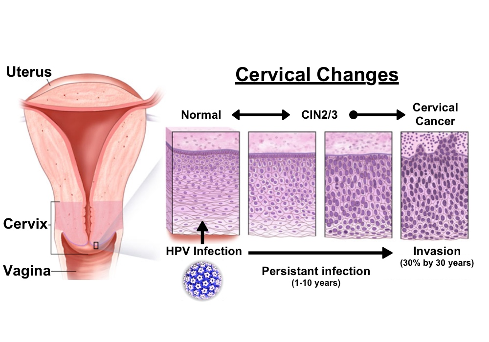 Endometrial cancer type 1 and 2 Hpv gardasil virus