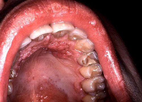 hpv and lip cancer