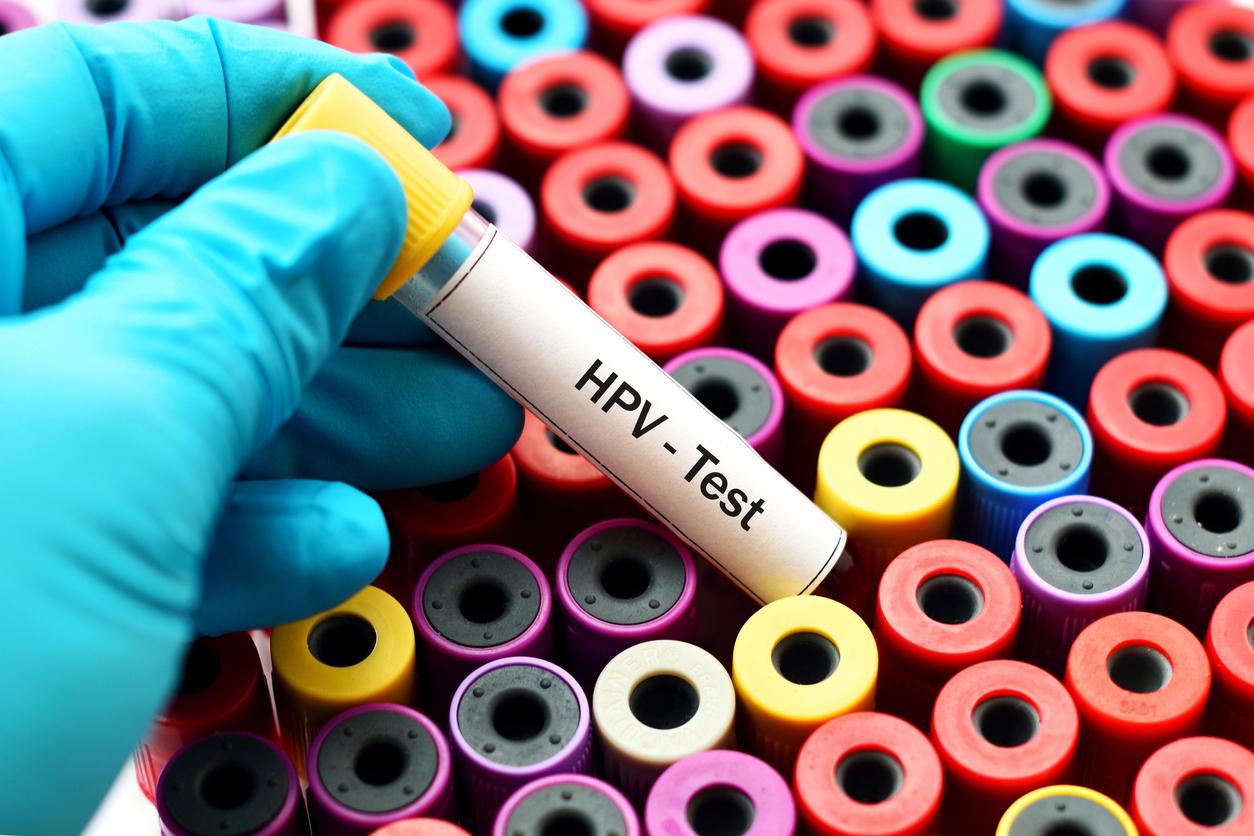 Hpv4 (human papillomavirus quadrivalent)