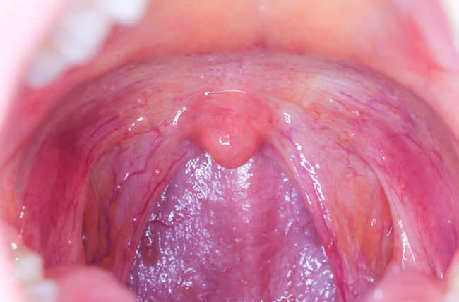 Can hpv cause tongue cancer