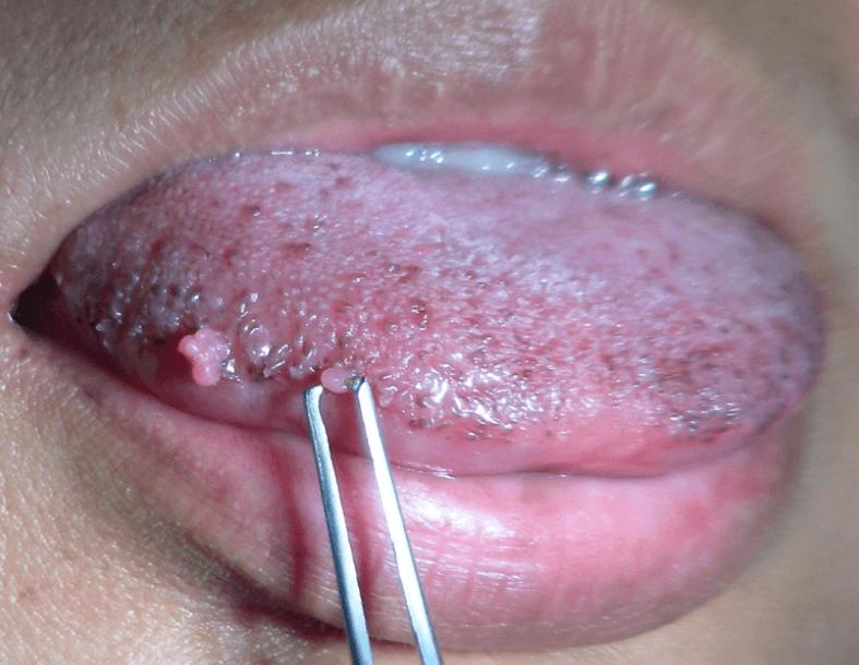 Papiloma cancer uterino, Cancerul de col uterin: infecţia cu HPV şi tratament