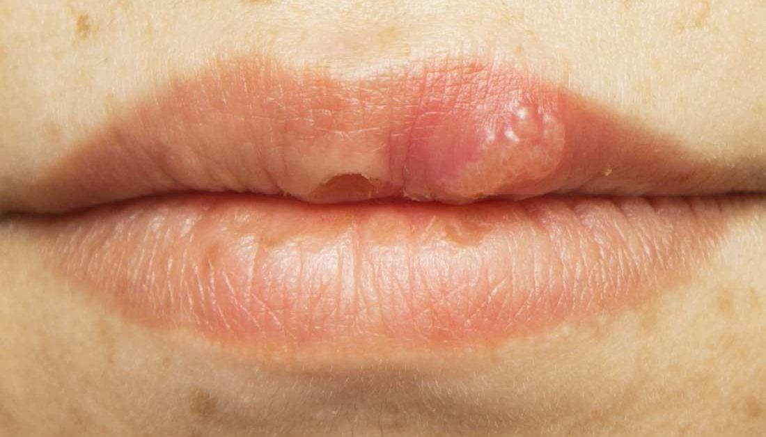 hpv lip treatment viermi în tratamentul nazal