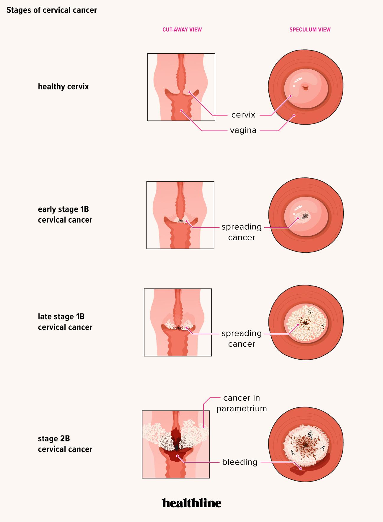 hpv pre cancer symptoms