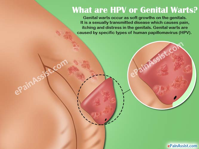hhh | Cervical Cancer | Oral Sex, Human papillomavirus cause genital wart