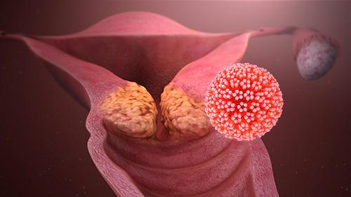 Papilloma virus uomo glande