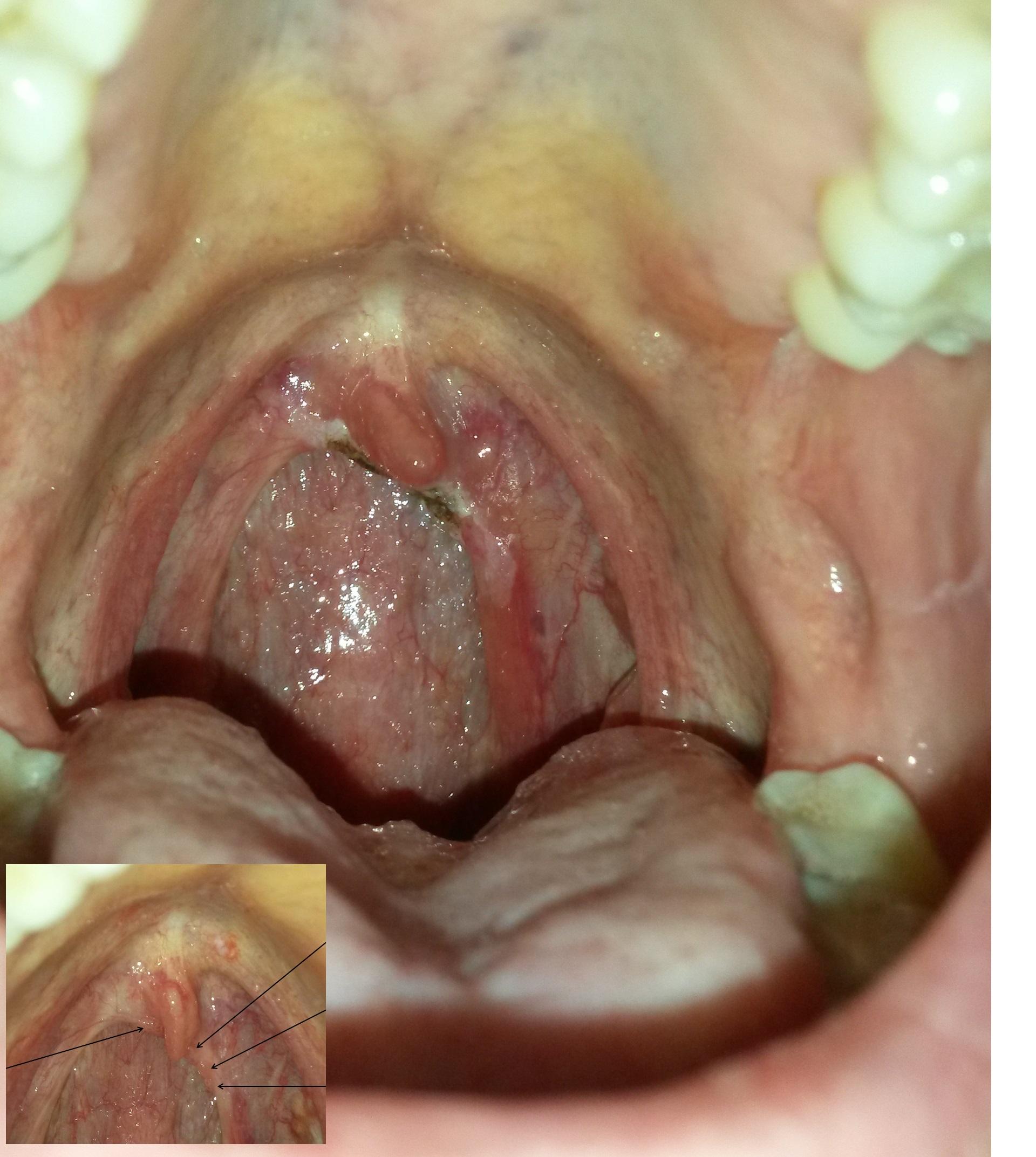 hpv vaccine dangers giardioza veziculara